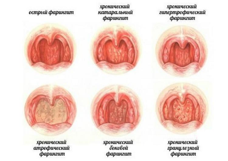 Ларингит у взрослых — симптомы и лечение, что это такое, фото, первые признаки ларингита