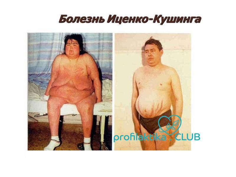 Синдром кушинга                (болезнь иценко-кушинга, синдром иценко-кушинга, гиперкортицизм, синдром гиперкортицизма)