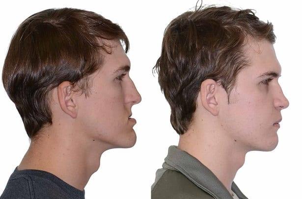 Кардинальная смена внешнего вида! глубокий, мезиальный, дистальный прикус: фото до и после брекетов