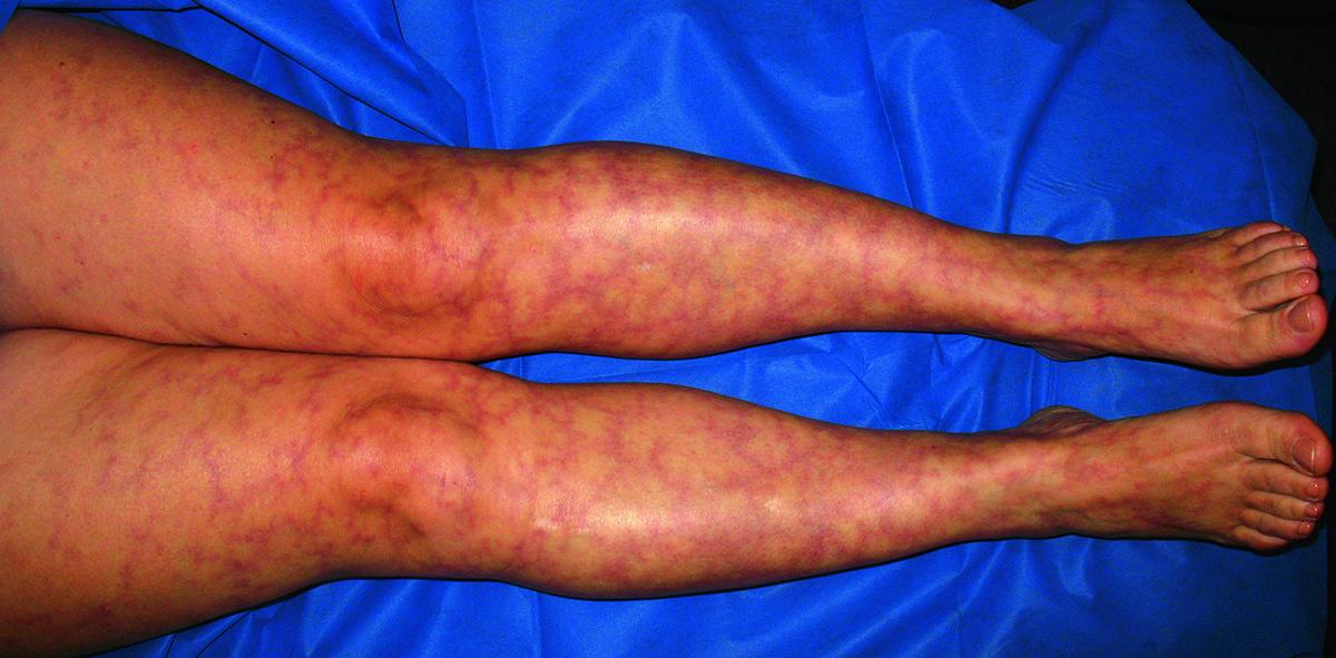 Геморрагический васкулит: причины возникновения, диагностика, лечение, формы и симптомы (110 фото)