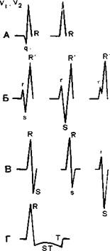 Что означает гипертрофия миокарда левого желудочка?