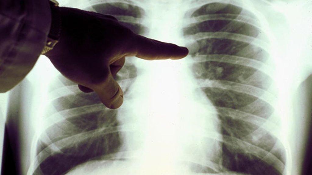 Операции на легких: резекция, полное удаление - показания, проведение, реабилитация