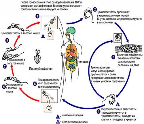 Африканский трипаносомоз (сонная болезнь) - симптомы болезни, профилактика и лечение африканского трипаносомоза (сонной болезни), причины заболевания и его диагностика на eurolab