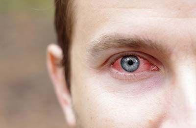 Глазное давление при глаукоме. методы измерения и нормы глазного давления.