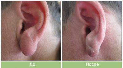 Прыщ в ухе – причины, симптомы, лечение