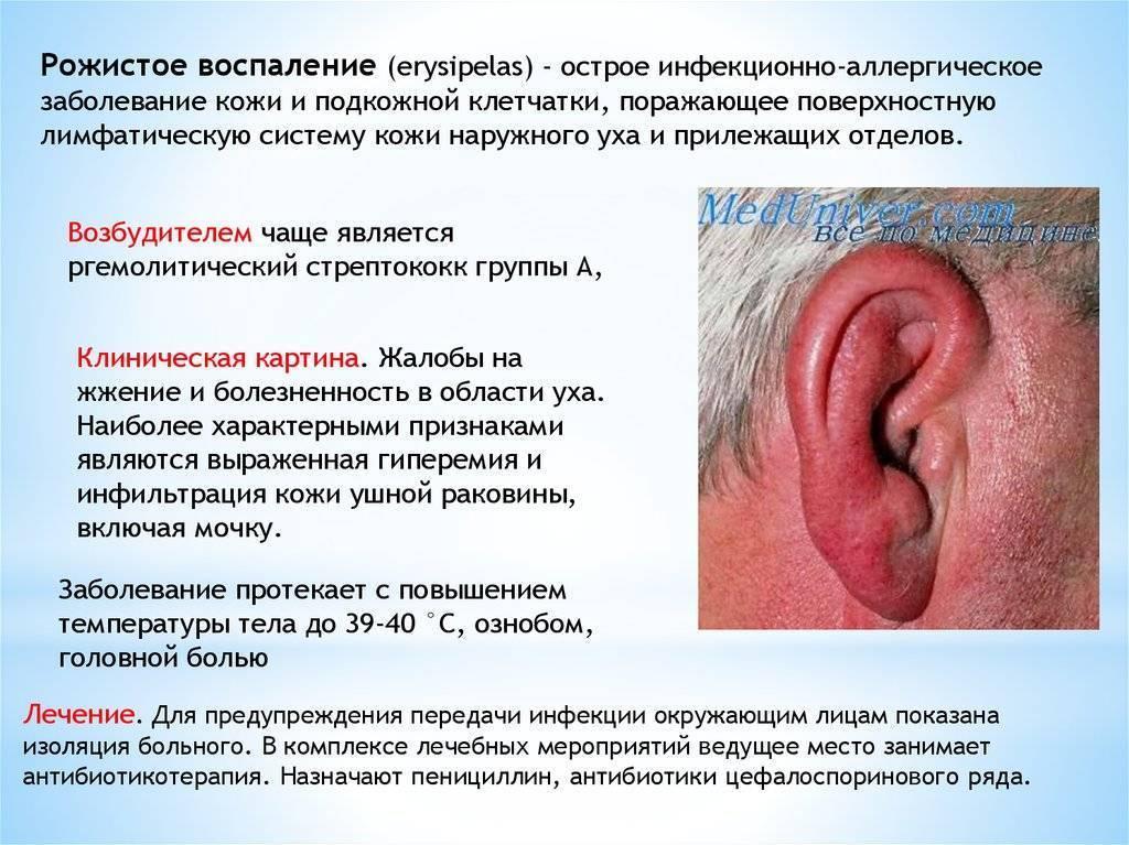 Острое воспаление среднего уха и сосцевидного отростка