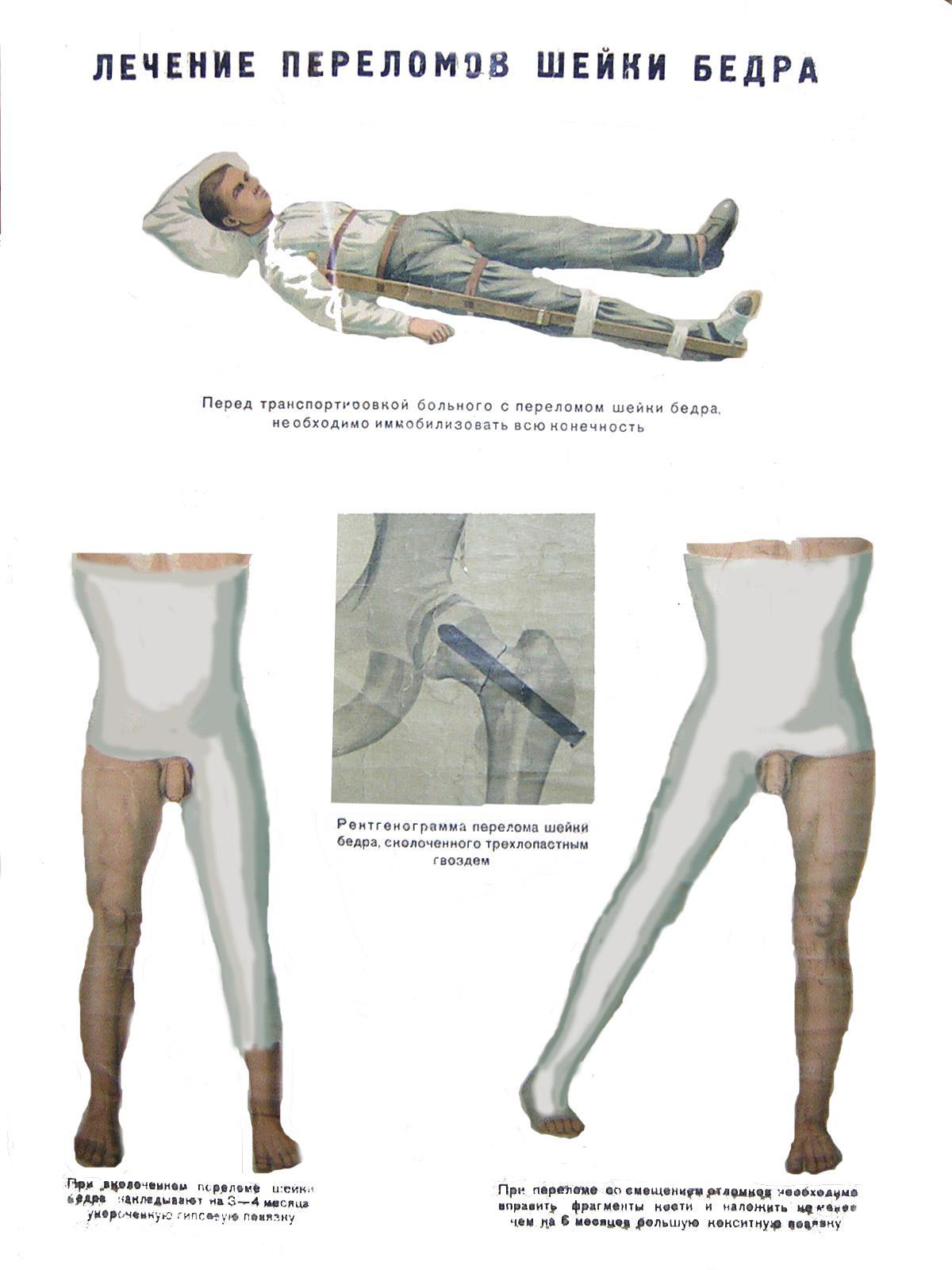Первая помощь и лечение при переломе шейки бедра