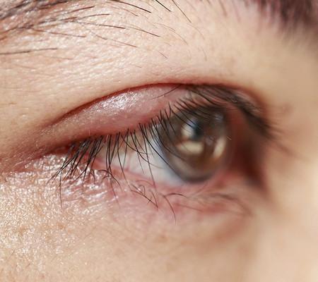 Симптомы, причины развития, осложнения и лечение мейбомита