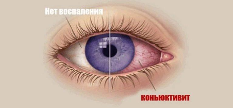 Тетрациклиновая мазь для глаз
