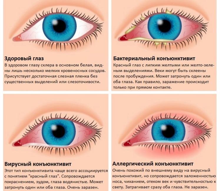 Как проводить лечение глазными каплями аломид