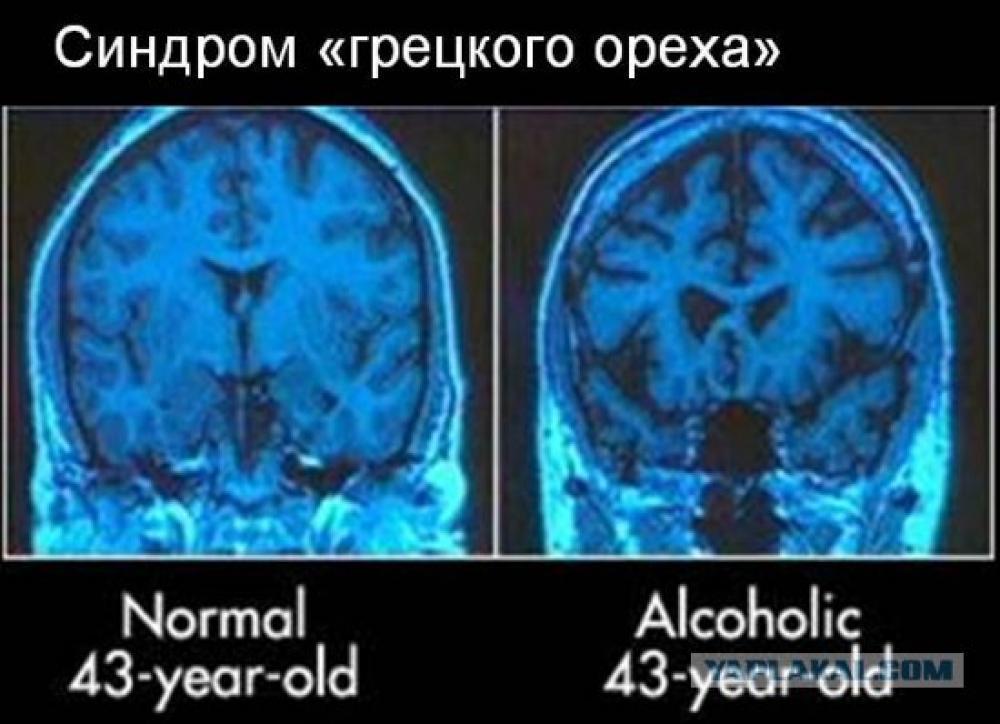 Правда ли, что алкоголь предотвращает деменцию?