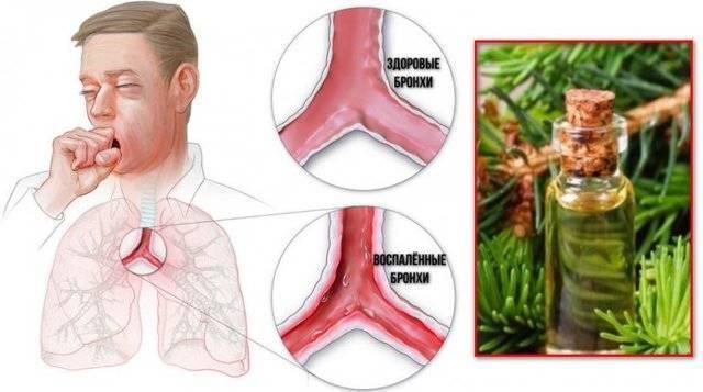 Лечебные свойства пихтового масла при простуде и кашле