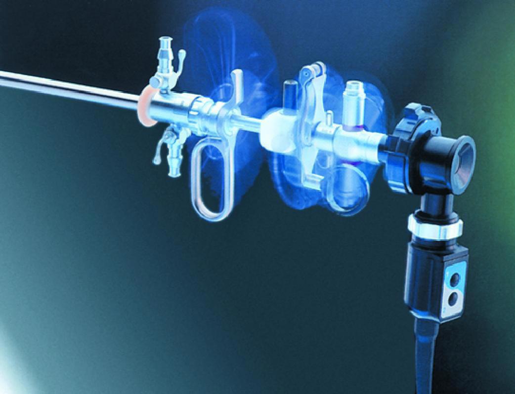 Все за и против лапароскопии при лечении бесплодия