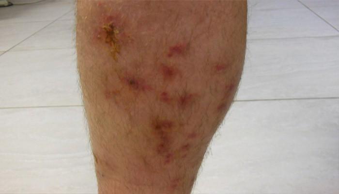 Рожистое воспаление — будьте внимательны к травмам кожи