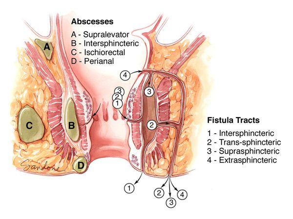 Парапроктит после операции