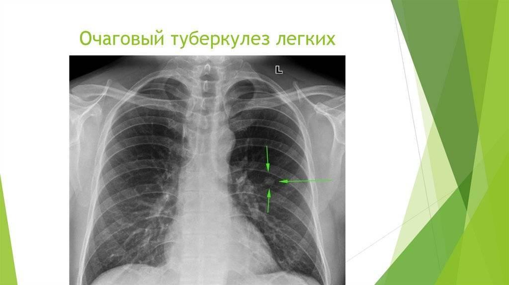 Инфильтративный туберкулез заразен или нет