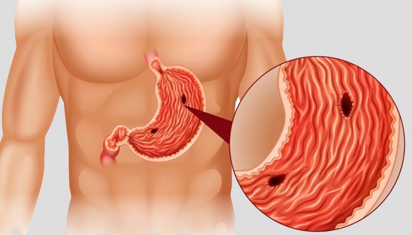 Питание после операции прободение язвы желудка