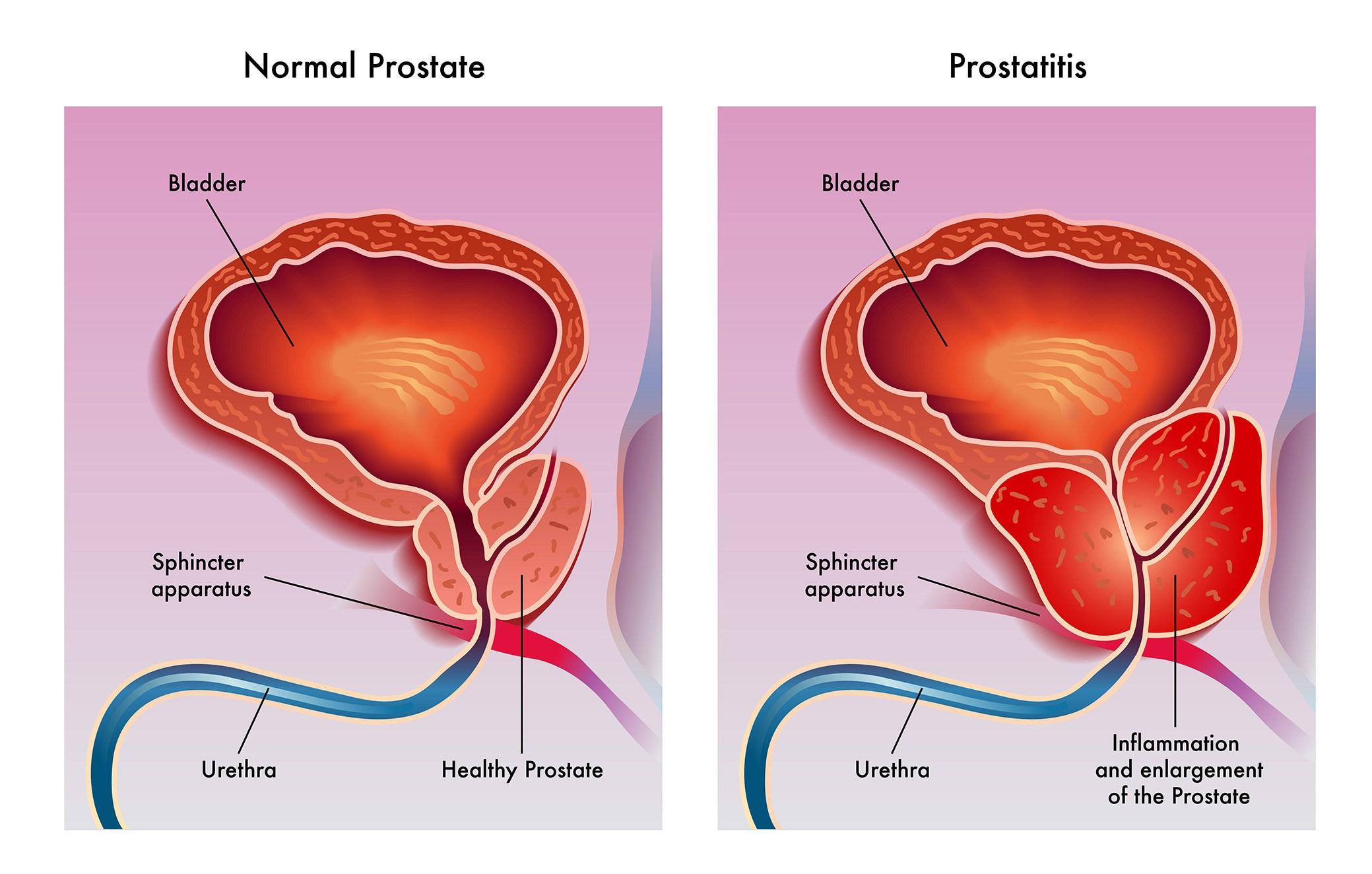 Как определить воспаление простаты у мужчин