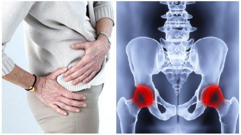 Диета и питание при коксартрозе