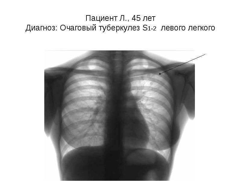 Очаговый туберкулез легких: заразен или нет, лечение, симптомы, сколько лечиться и как передается?