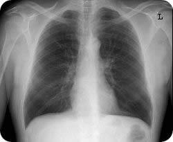 Как выглядит снимок легких у больного туберкулезом