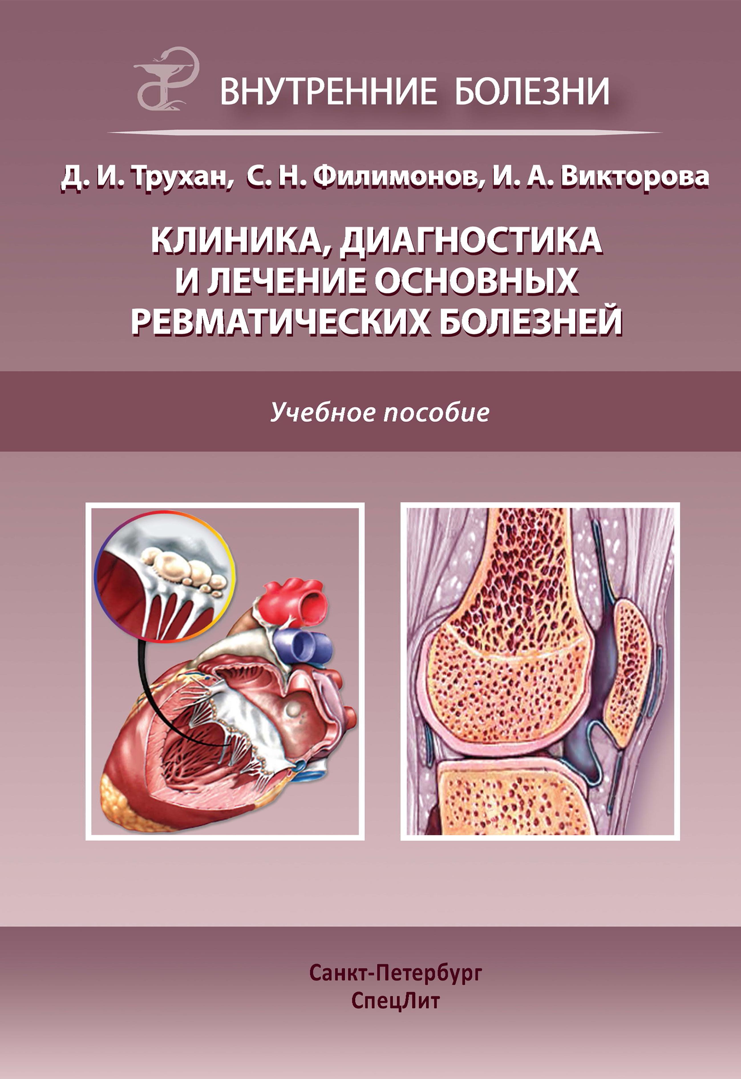 Ревматические болезни