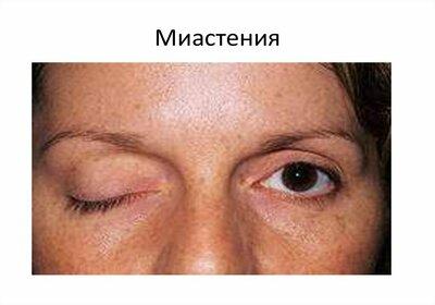 Миастения - симптомы болезни, профилактика и лечение миастении, причины заболевания и его диагностика на eurolab