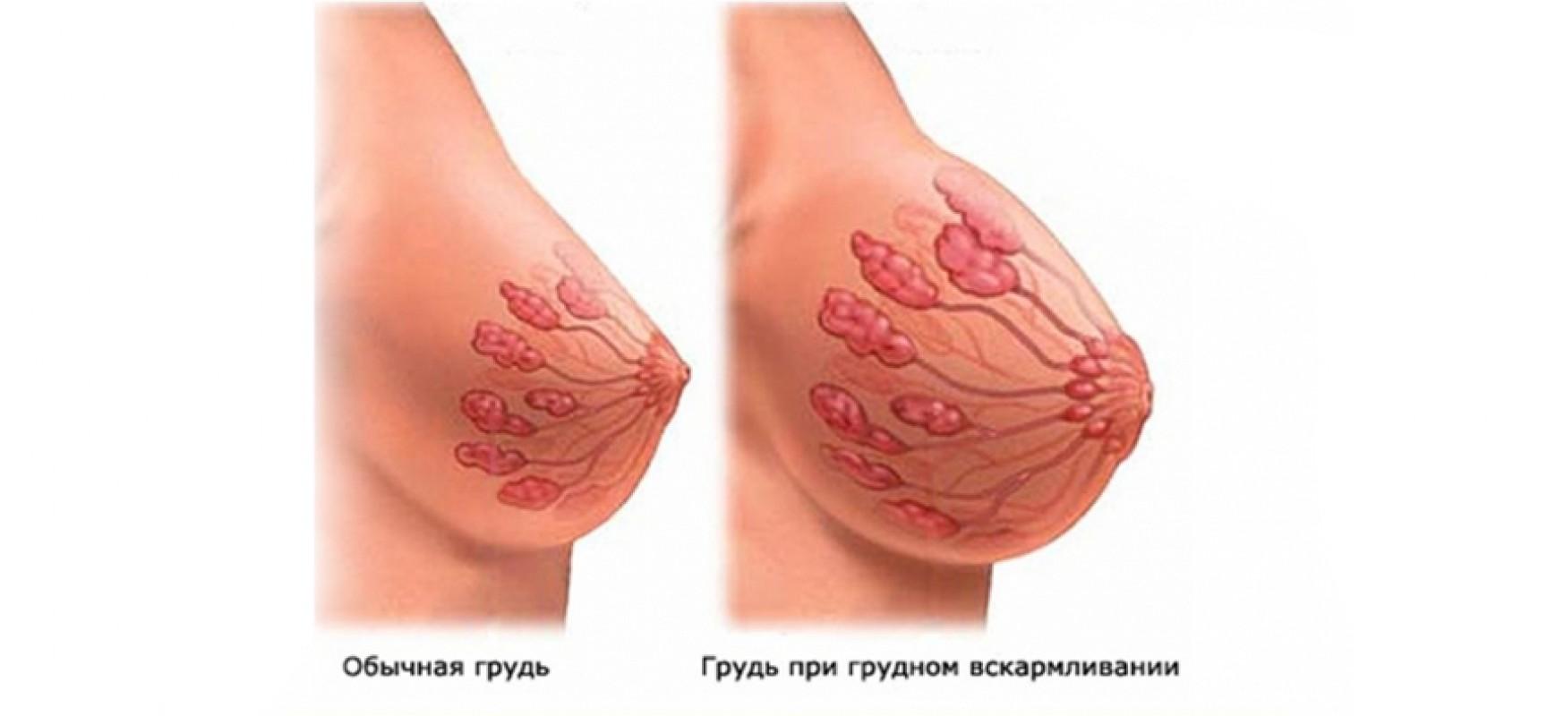 Острый мастит                (грудница)