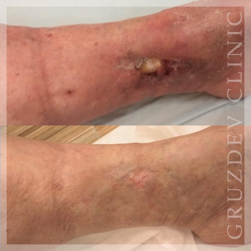 Трофическая язва на ноге лечение препараты мази