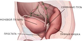 Питание при раке предстательной железы: диетическое меню при онкологии i, ii, iii и iv степени
