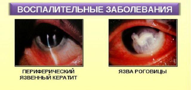 Флоксал (floxal) глазные капли. цена, инструкция по применению, аналоги
