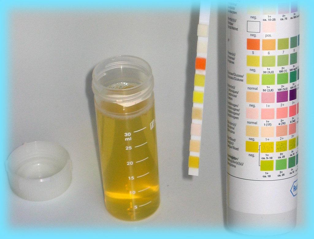 Анализ мочи на ацетон - значения нормы для ребенка и взрослого, причины повышенного уровня и лечение