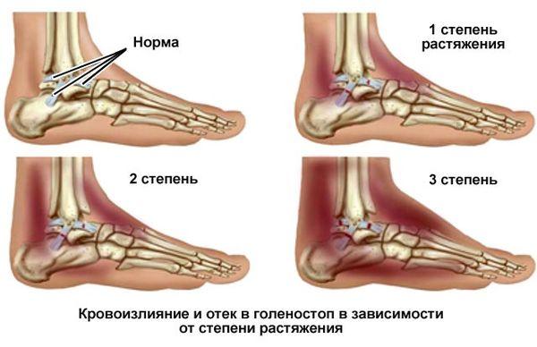 Восстановление и реабилитация связок коленного сустава после травмы