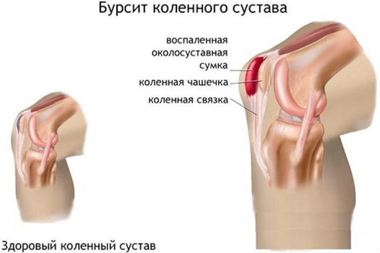 Полная характеристика гнойного бурсита: симптомы, диагностика, лечение