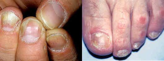 Грибок на руках - симптомы, фото и лечение