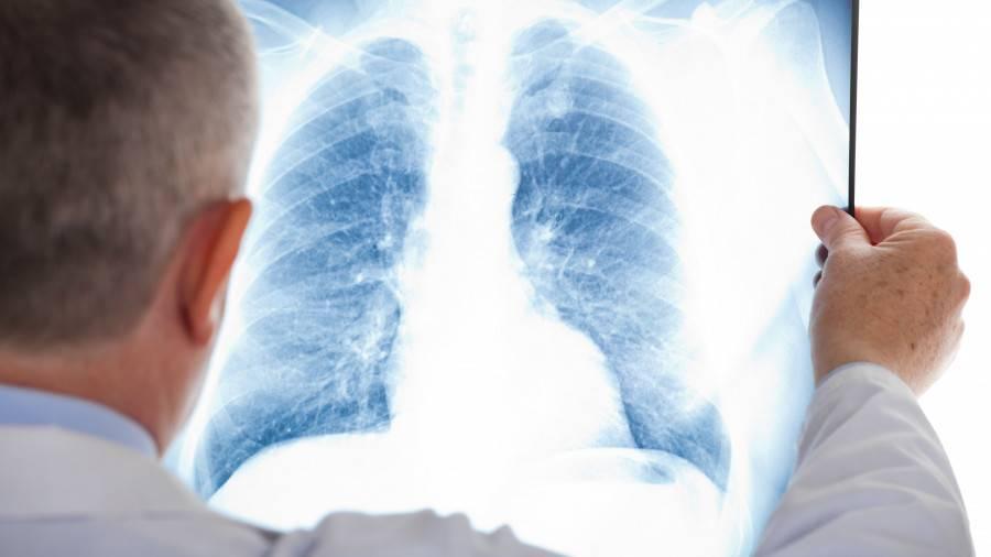 Можно ли умереть от туберкулеза и сколько с ним живут?