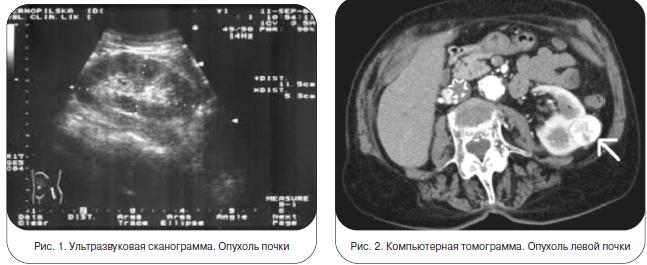 Ангиомиолипома (почки): понятие, развитие, опасна или нет, проявления, лечение