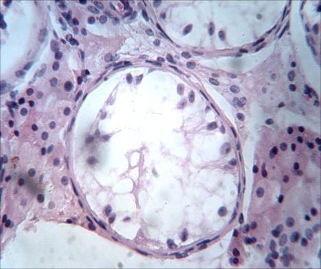 Опасность ангиомиолипомы почки: симптомы и способы терапии