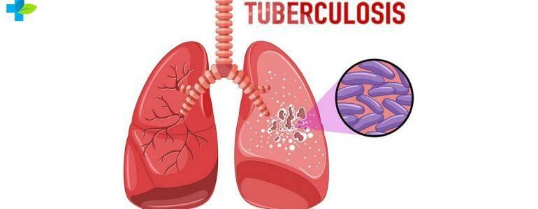Туберкулез лёгких — признаки на ранних стадиях, симптомы, формы, лечение у взрослых и профилактика