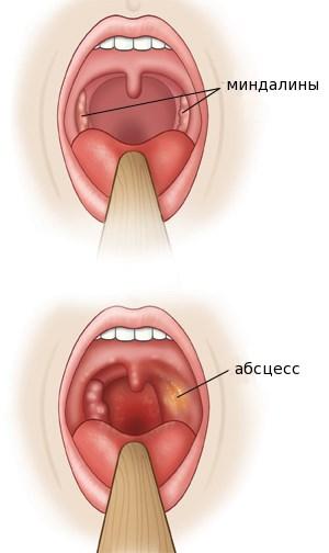 Паратонзиллярный абсцесс - симптомы, лечение, вскрытие, диагностика