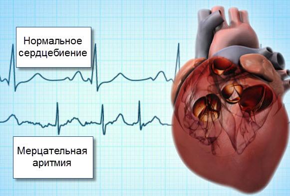 От чего мерцательная аритмия сердца — симптомы и методы лечения