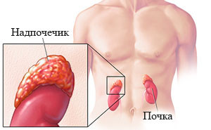 Адреногенитальный синдром: симптомы и лечение