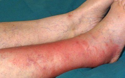 Как лечить рожистое воспаление ноги в домашних условиях - лечение ног