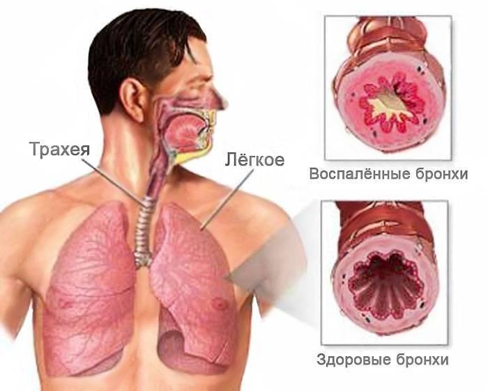 Виды бронхита, причины, симптомы, осложнения и методы лечения у взрослых