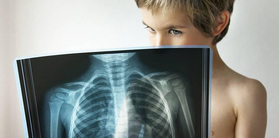 Можно ли пневмонию перепутать с туберкулезом