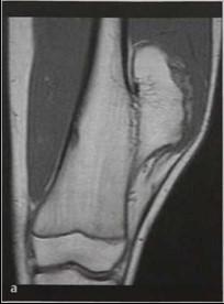Экзостоз коленного сустава у детей операция нужно ли делать