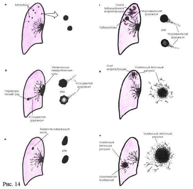 Чем отличается рак легких от туберкулеза