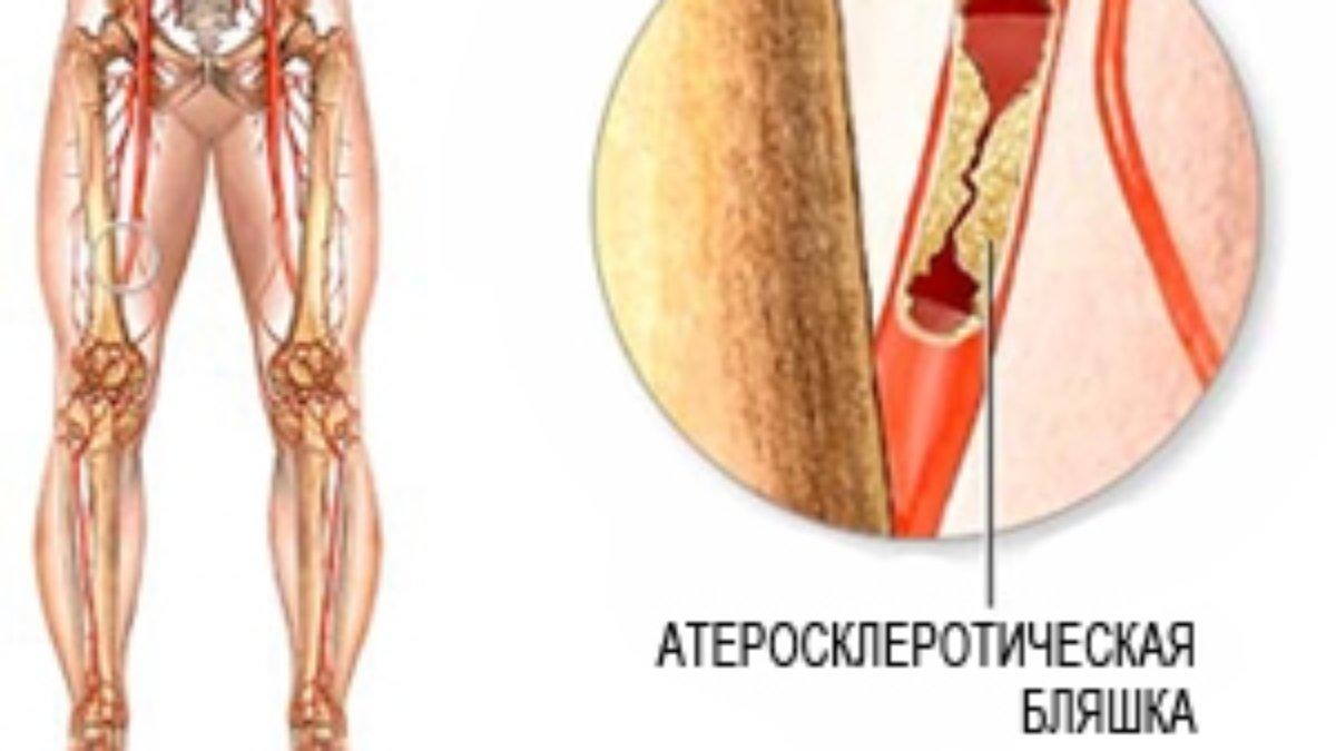 Облитерирующий эндартериит сосудов нижних конечностей: основные причины и методы лечения