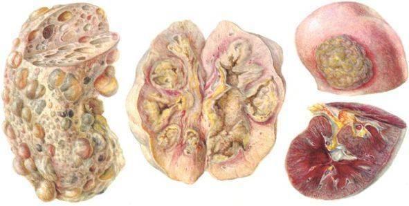 Туберкулёз почек: причины, симптомы, диагностика и лечение