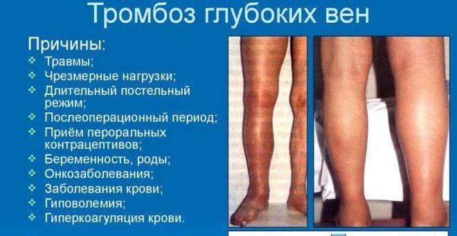 Тромбофлебит: симптомы, причины возникновения